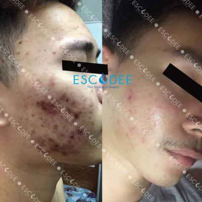 acne_01
